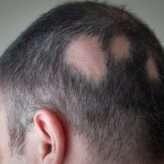 How Does Alopecia Affect A Person's Life & How To Overcome From It?
