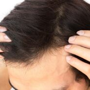 Fact or Fiction: Adding Fats to Your Diet Can Combat Hair Loss