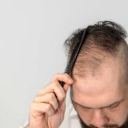 Hair Loss- Causes and Cures
