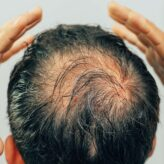 Hair Restoration | Is There Really A Miracle Cure?